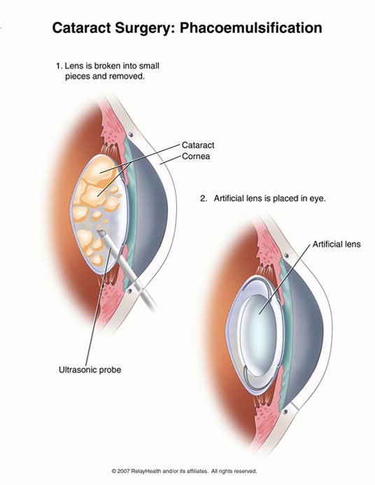 cataract surgery | SlowItDownCKD