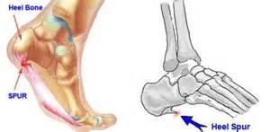 bone spur slowitdownckd : heel diagram - findchart.co