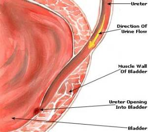 urinary-tract-infection-uti-picture