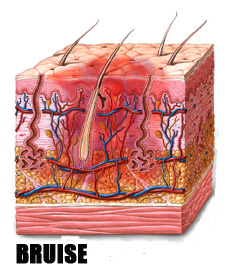 why are arteries deeper than veins in the body Blue veins: introduction veins are blood vessels that carry deoxygenated blood back from the various body tissues to the heart veins that can be seen just under the skin appear to be blue in color.