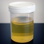 Urine_sample
